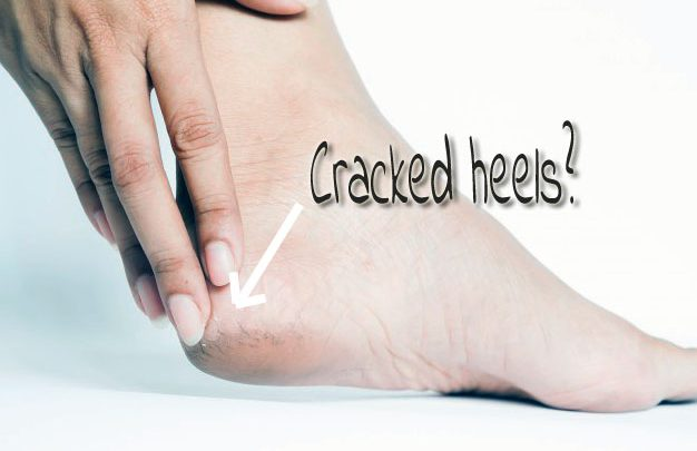 woman creacked heels